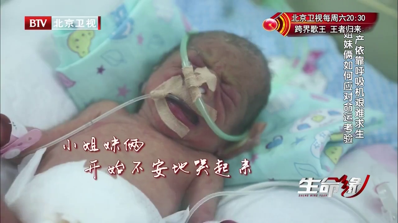 《生命缘 第五季》-20170612期精彩看点 早产姐妹只有三斤 靠呼吸机来维生