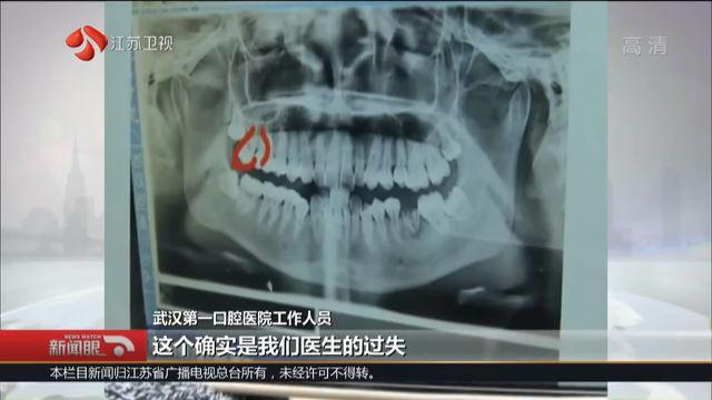 女子去医院拔智齿,回家后却发现智齿还在,好牙没了?