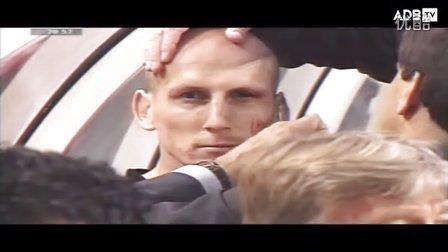 2000年欧洲杯 荷兰队斯塔姆刮骨疗伤
